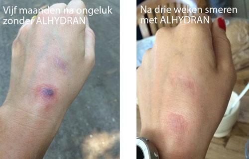 litteken-voor-na