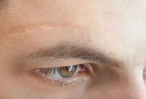 littekens op gezicht