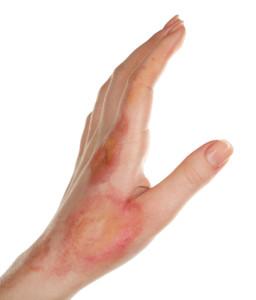 tweedegraads brandwond, litteken