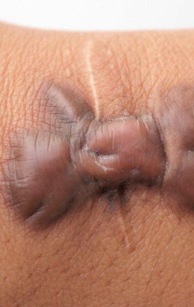 Keloïd litteken