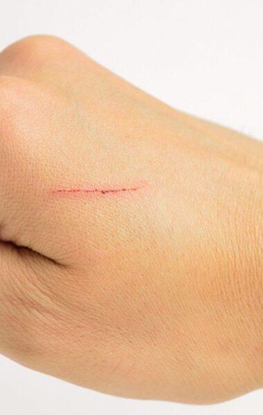 Klein litteken verwijderen