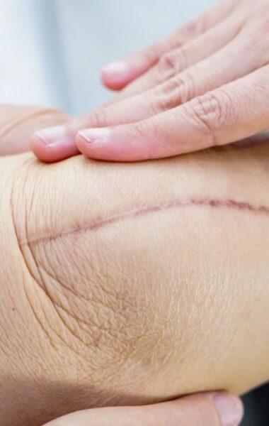 litteken verzorgen na operatie