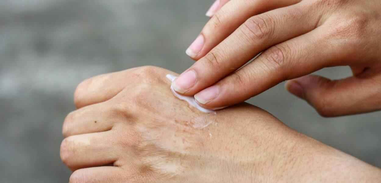Crème tegen littekens