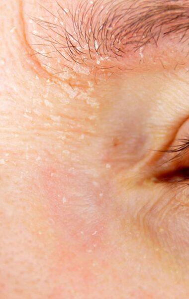 Droge huid gezicht