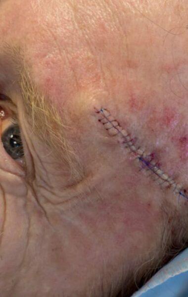 Litteken na Mohs chirurgie
