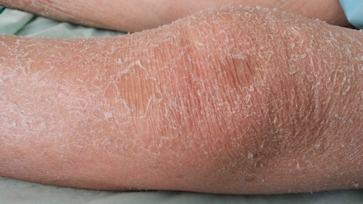 (Extreem) droge huid op de benen