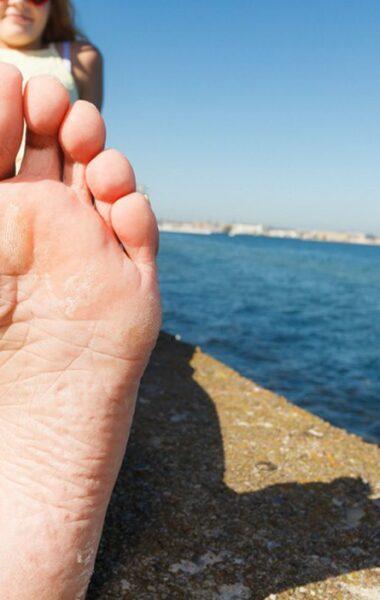 Wat helpt tegen droge voeten? Bekijk de tips!